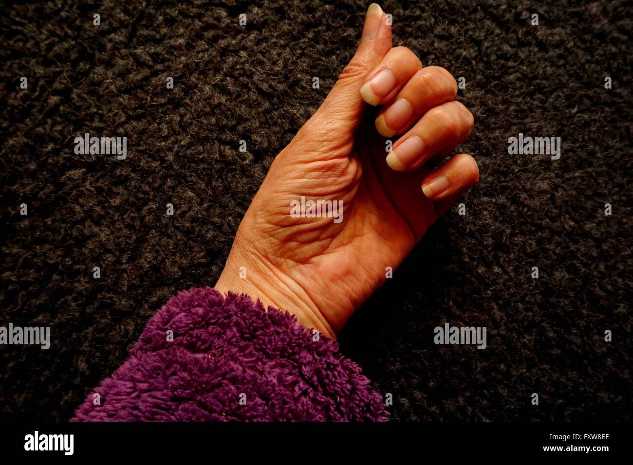 Alternde Hand eine Textur entwickelt hat ihren ganz eigenen Stockbild