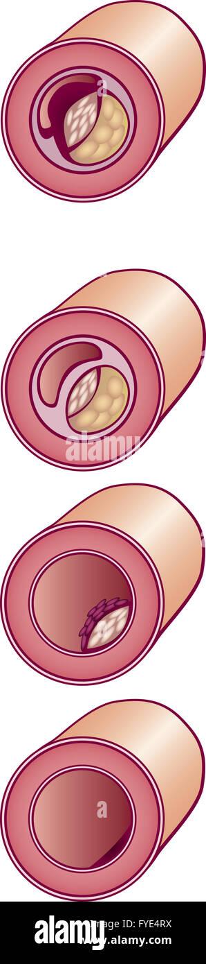 Schlechtes Cholesterin in Vene Stockbild
