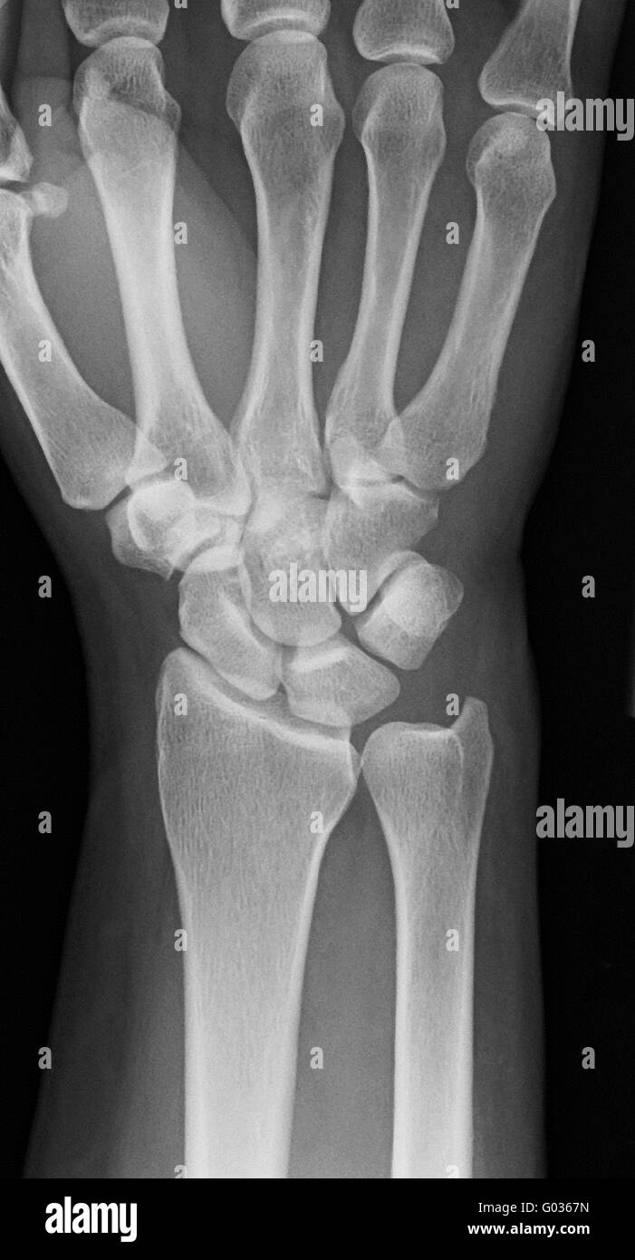 Röntgen-Hand Stockfoto, Bild: 103332985 - Alamy
