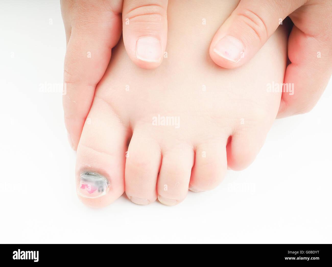 Kleines Mädchen mit einem blauen Nagel auf Hallux Zeh Stockfoto ...