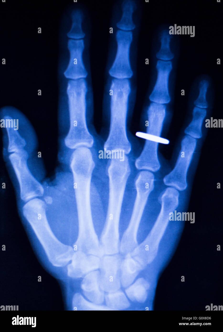 Fein Handwurzelknochen X Ray Anatomie Galerie - Anatomie Von ...