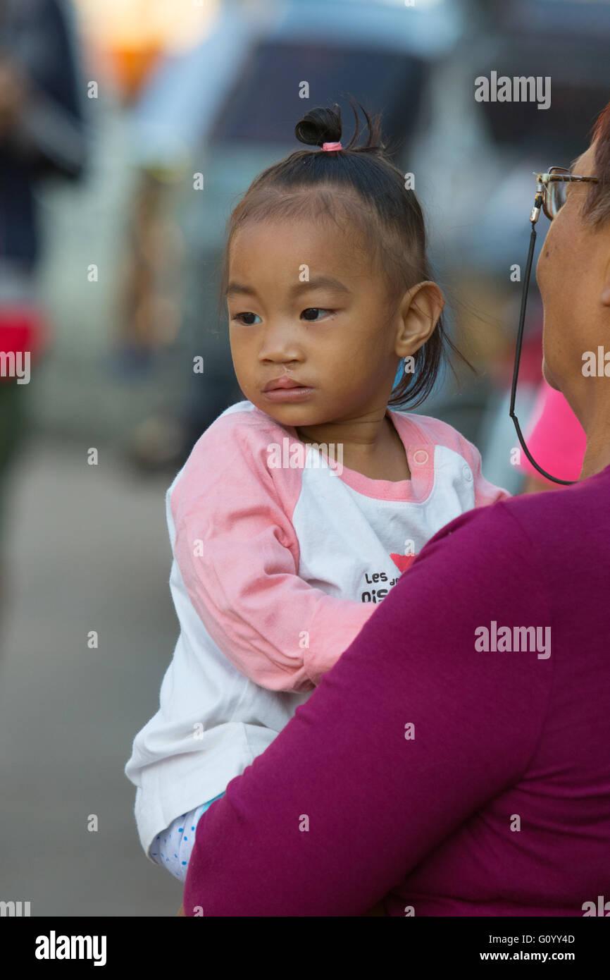 Eine ehrliche Porträt von Filipino Kind Anzeichen für eine Lippenspalte Betrieb. Stockbild