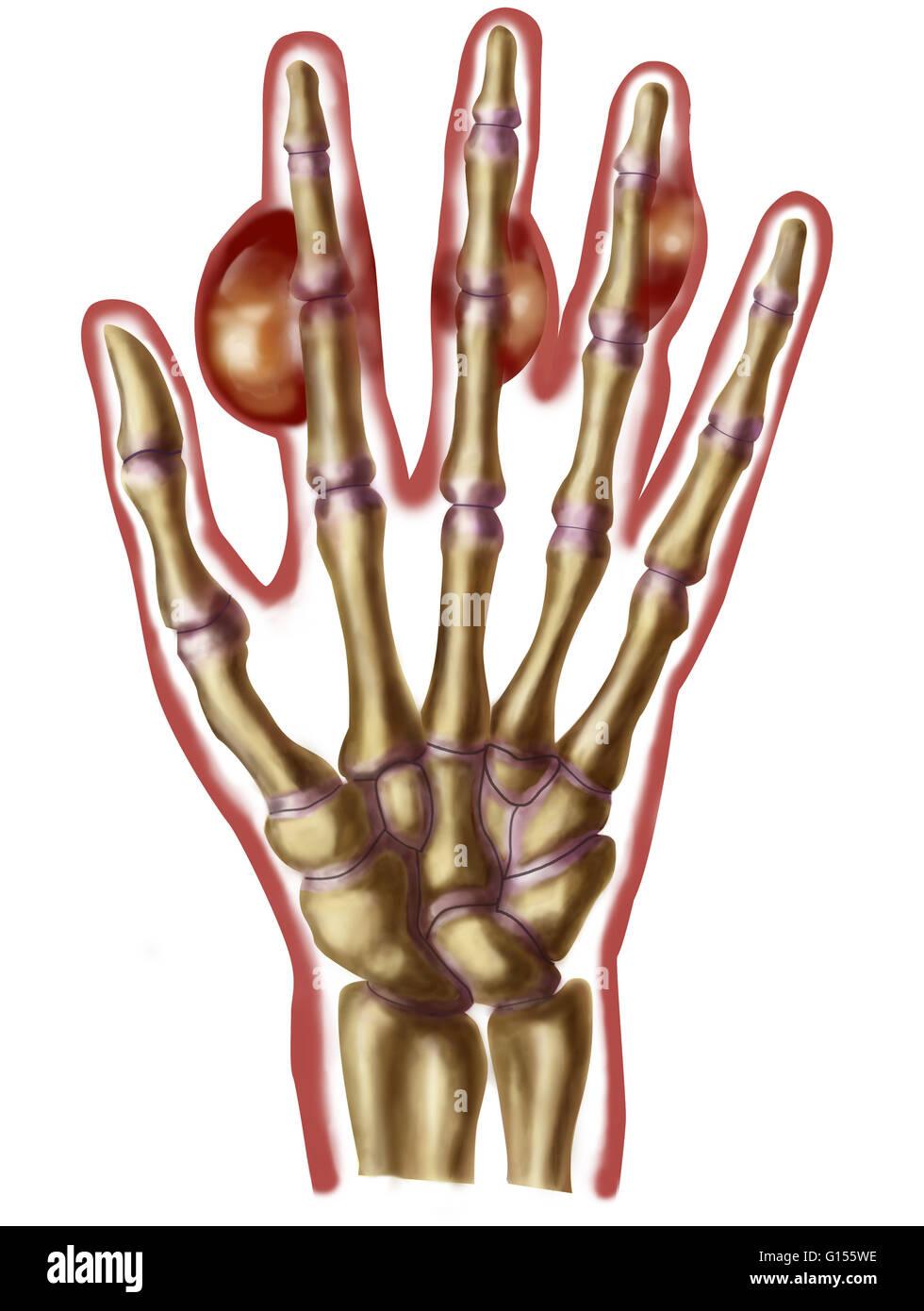 Abbildung einer menschlichen Hand mit Tophi oder Schwellungen an den ...