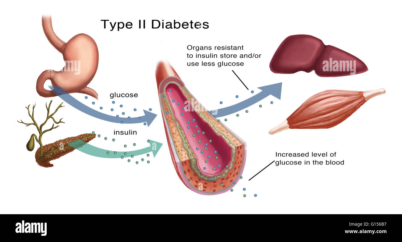 Illustration von Insulin und Glukose-Produktion bei Typ2 Diabetes ...