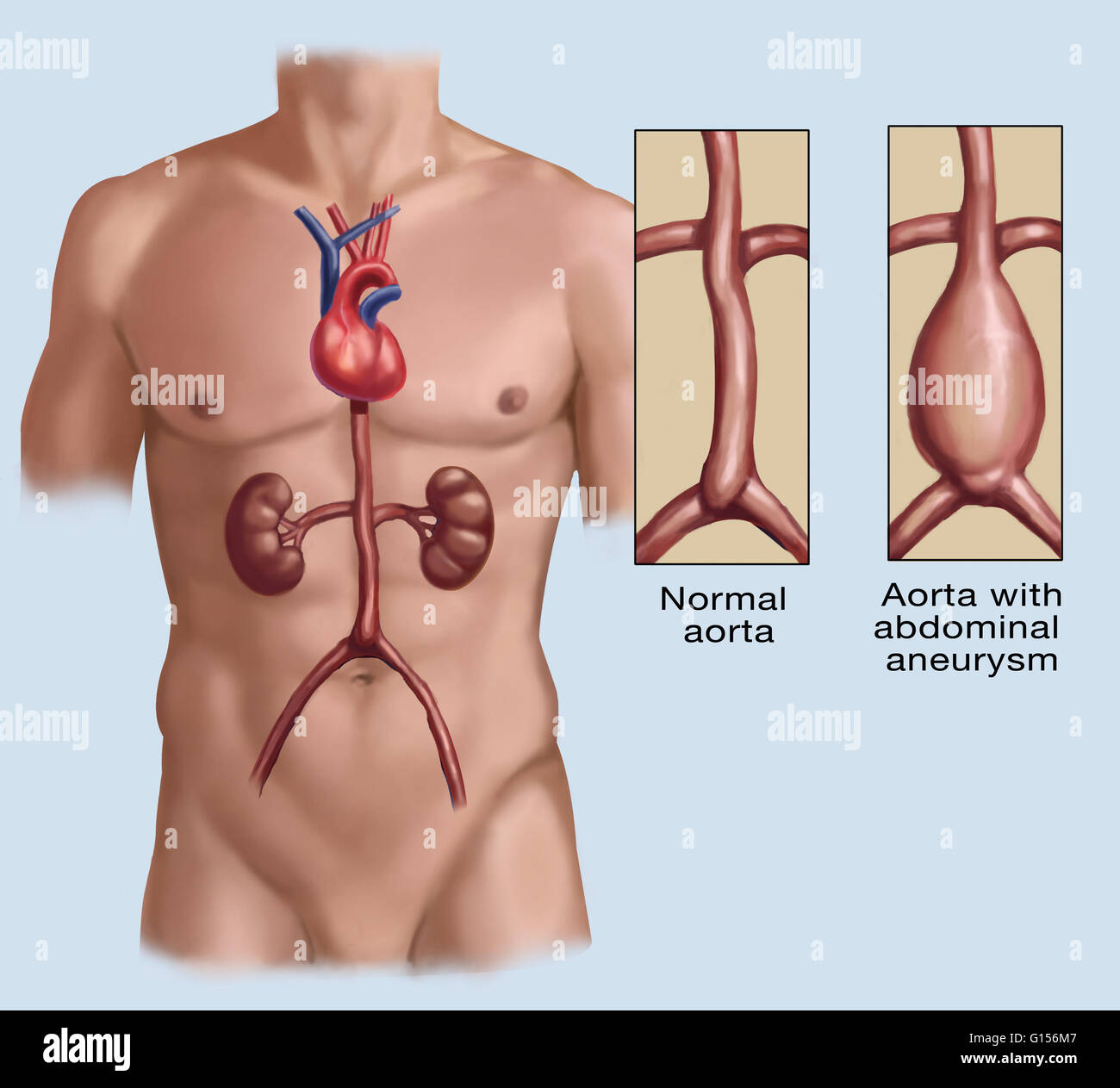 Berühmt Aorta Zweige Anatomie Fotos - Anatomie Von Menschlichen ...