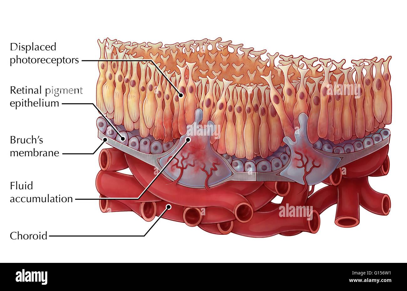 Veranschaulichung der Feuchte altersbedingte Makuladegeneration ...