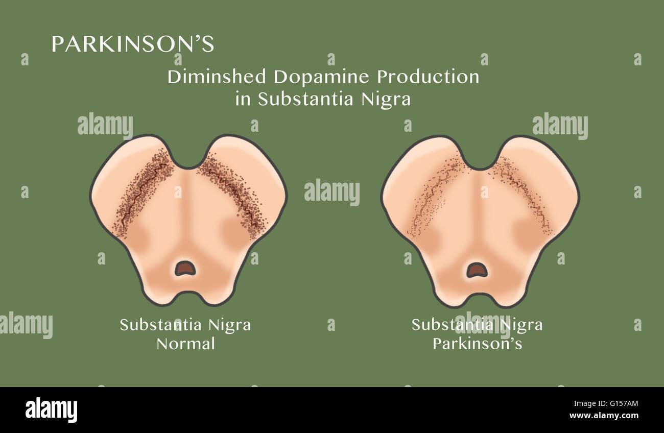 Darstellung, die Degeneration der dopaminergen Neuronen in der ...