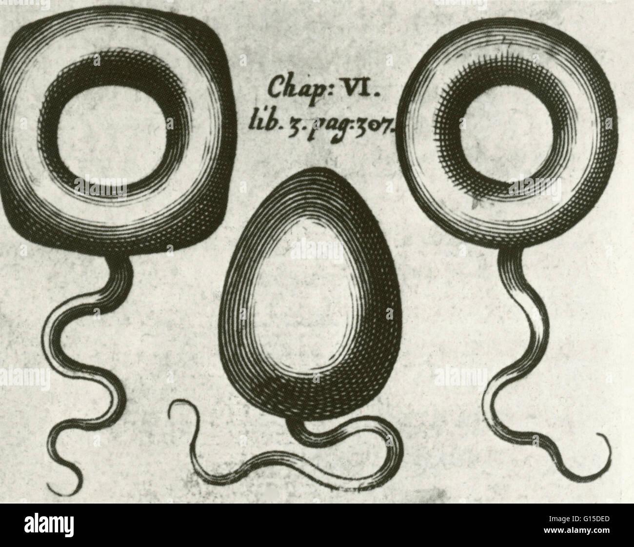 Prolapse Of The Uterus Stockfotos & Prolapse Of The Uterus Bilder ...
