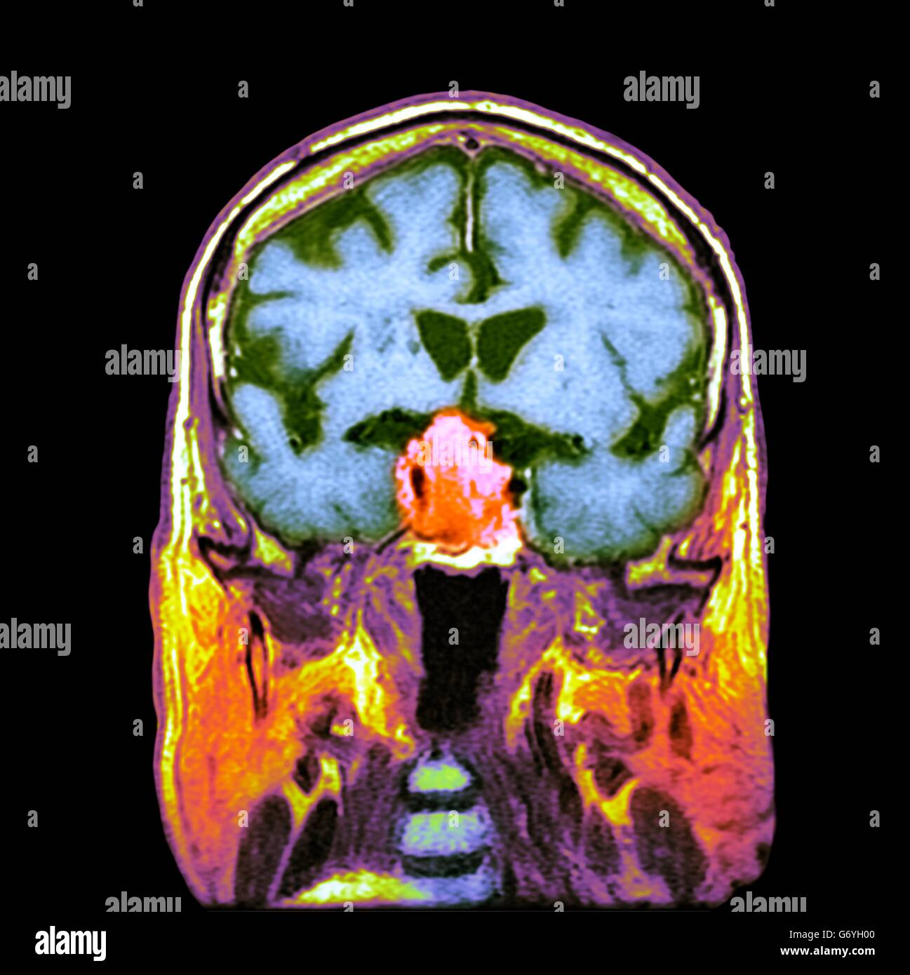 The Pituitary Gland Stockfotos & The Pituitary Gland Bilder - Alamy