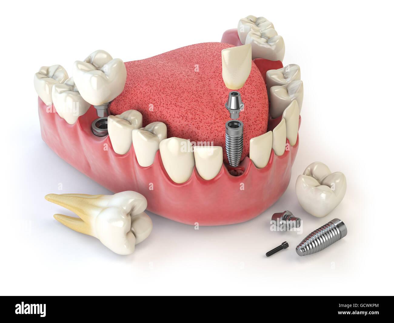 Menschlichen Zahnimplantat. Dental Konzept. Menschliche Zähne oder ...
