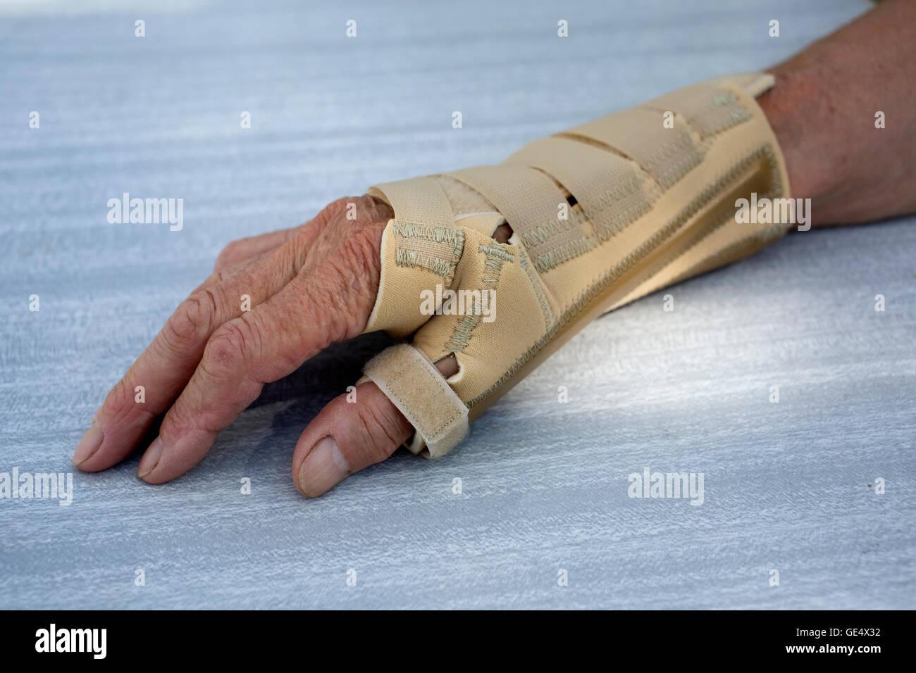 Arthritic Hand Von Ossur Neopren Arthritis Handgelenk Daumen Unterstützt  Großbritannien Strebe Stockbild