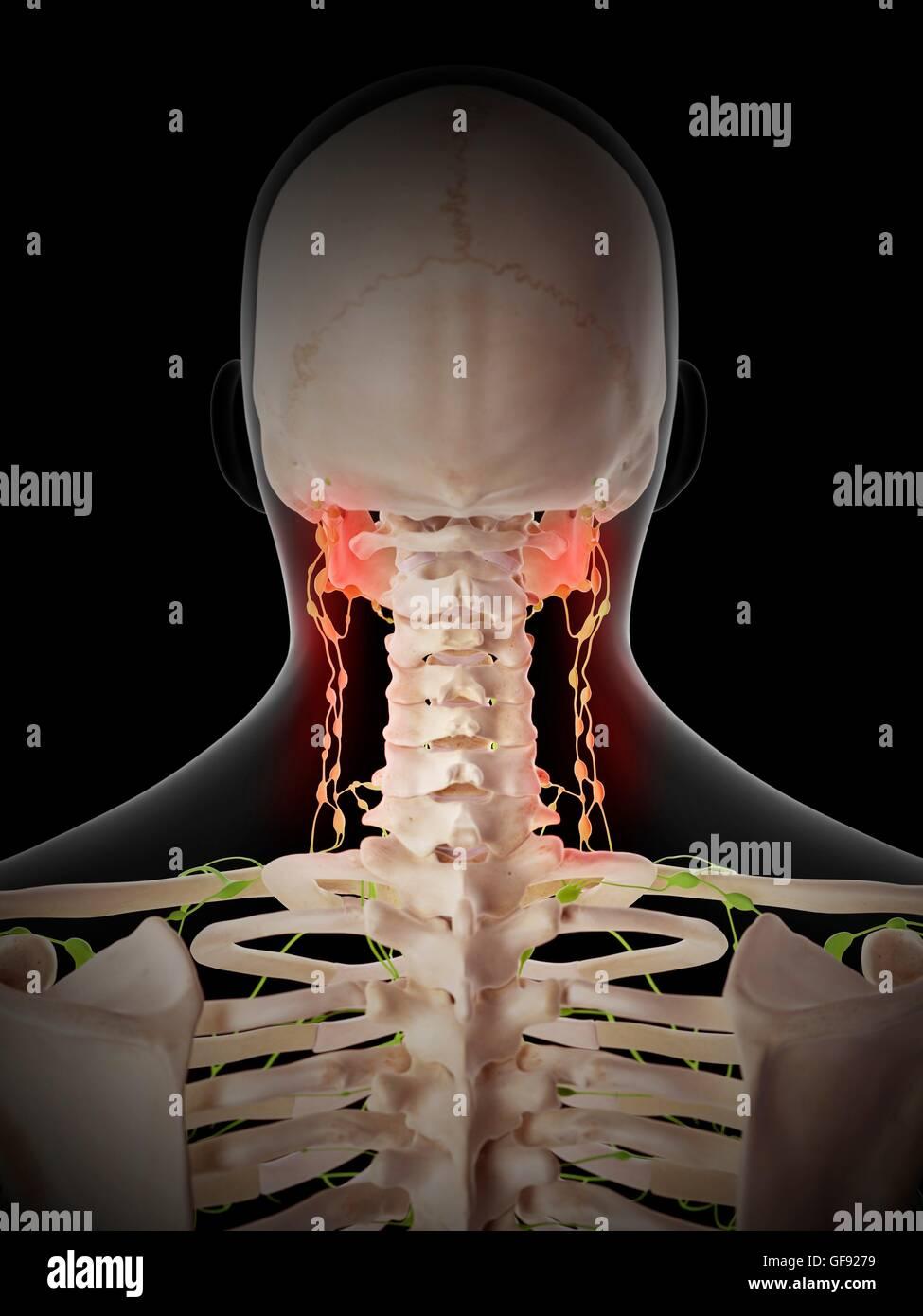 Lymph Nodes Head Neck Stockfotos & Lymph Nodes Head Neck Bilder - Alamy