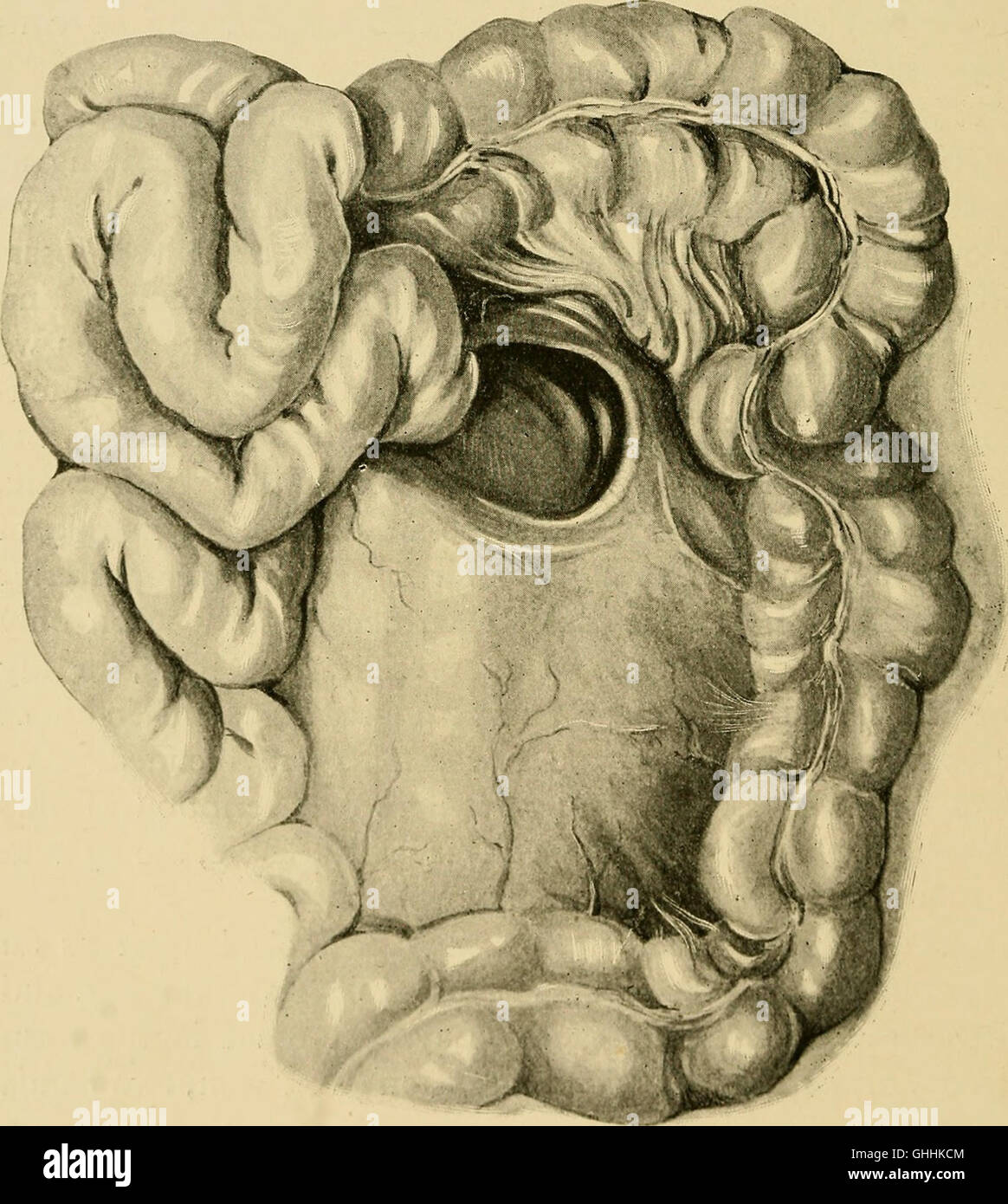 Retro-peritonealen Leistenbruch - Seins \