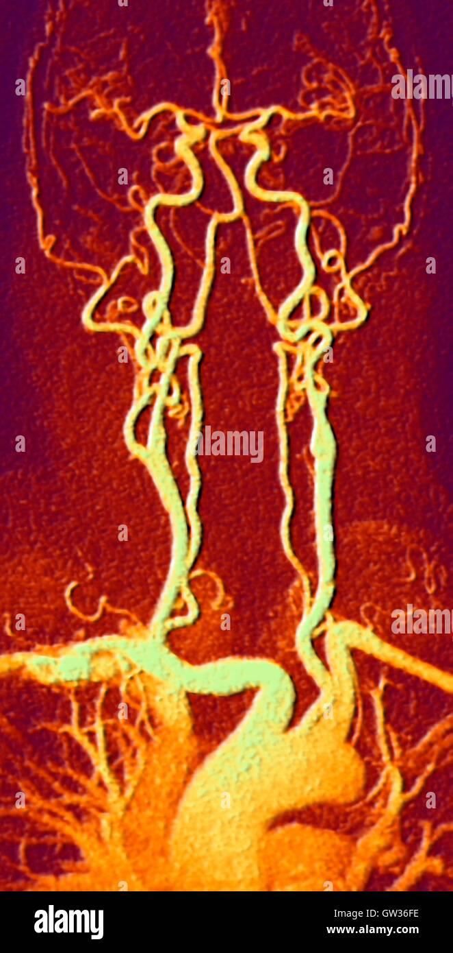 Brust, Hals und Kopf Arterien. Farbige Magnetresonanz-Angiographie ...