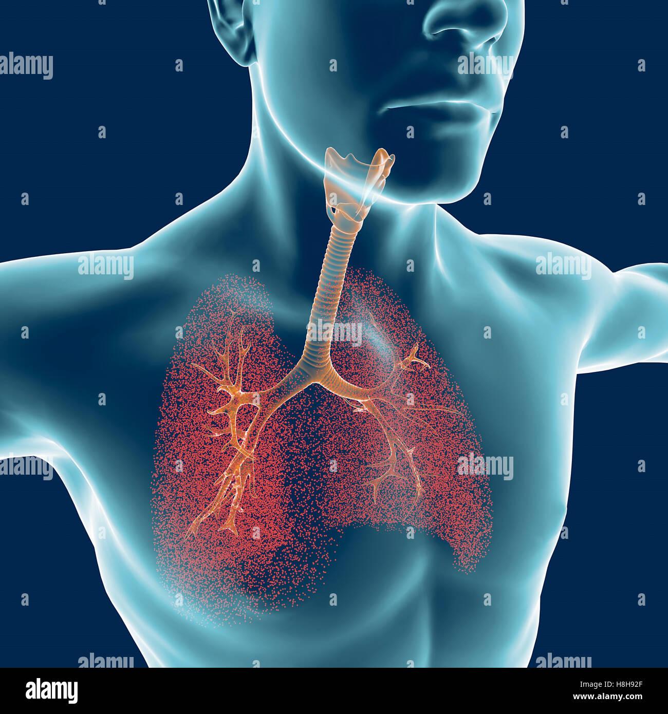 Bronchien, den menschlichen Körper, Mann, Lungen, Entzündung. 3D ...