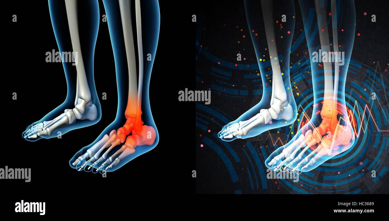 3D Render menschlicher Fußschmerzen mit der Anatomie von einem ...