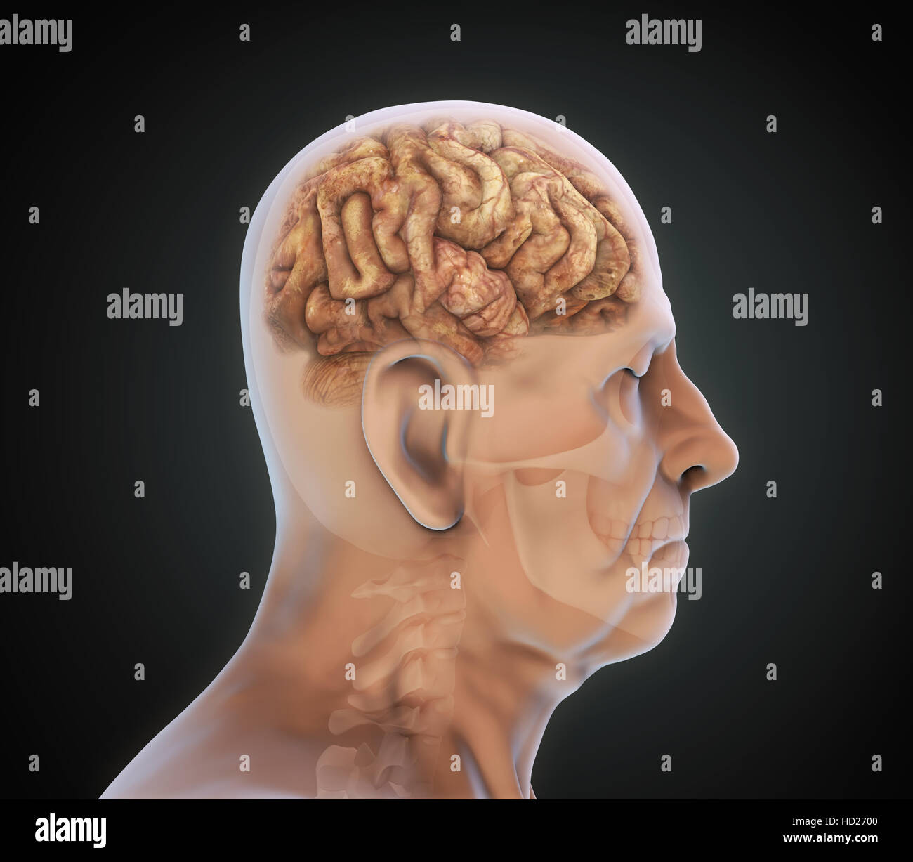 Brain Tumor Stockfotos & Brain Tumor Bilder - Alamy