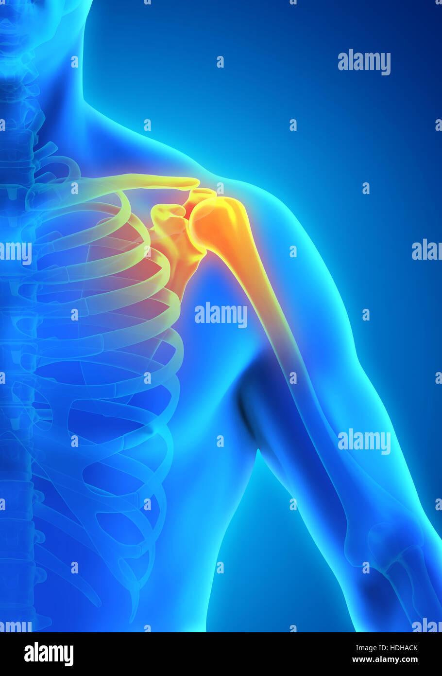 Wie können sich Schulterschmerzen äußern?