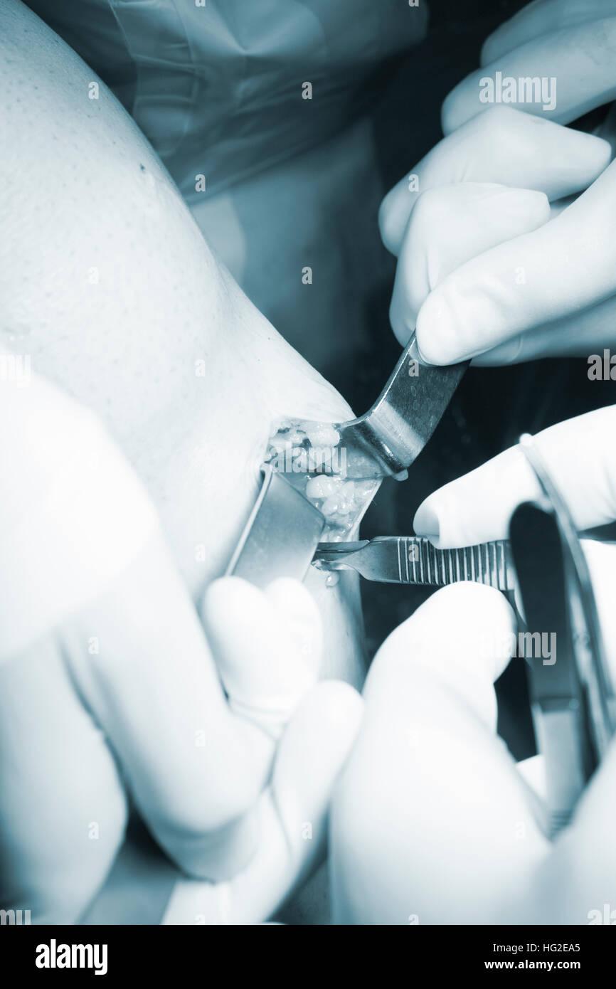 Chirurgische Operation Knie Arthroskopie Mikrochirurgie am Knie ...