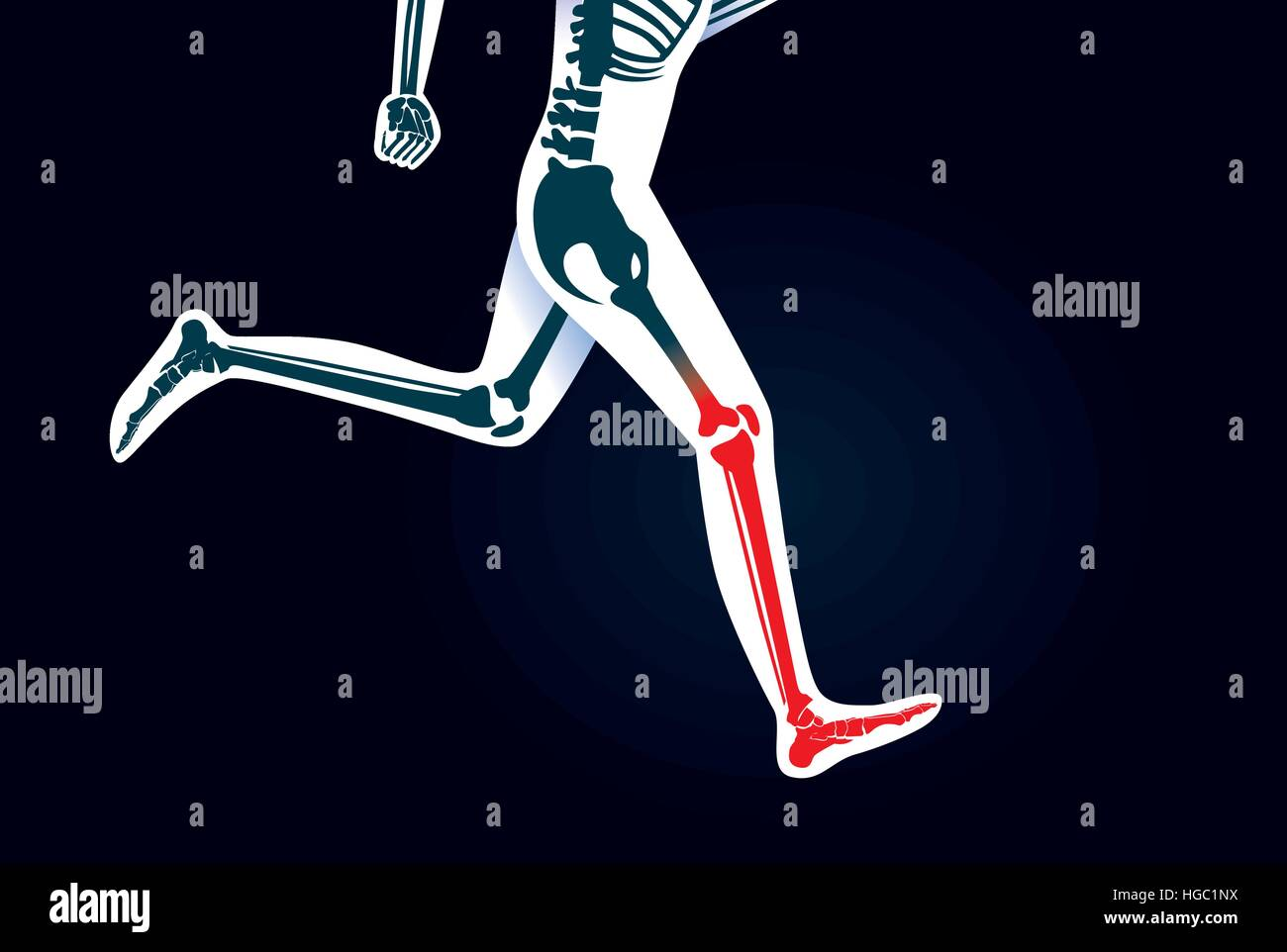 Menschliche Knochen und Fuß während laufen haben ein rotes Signal ...