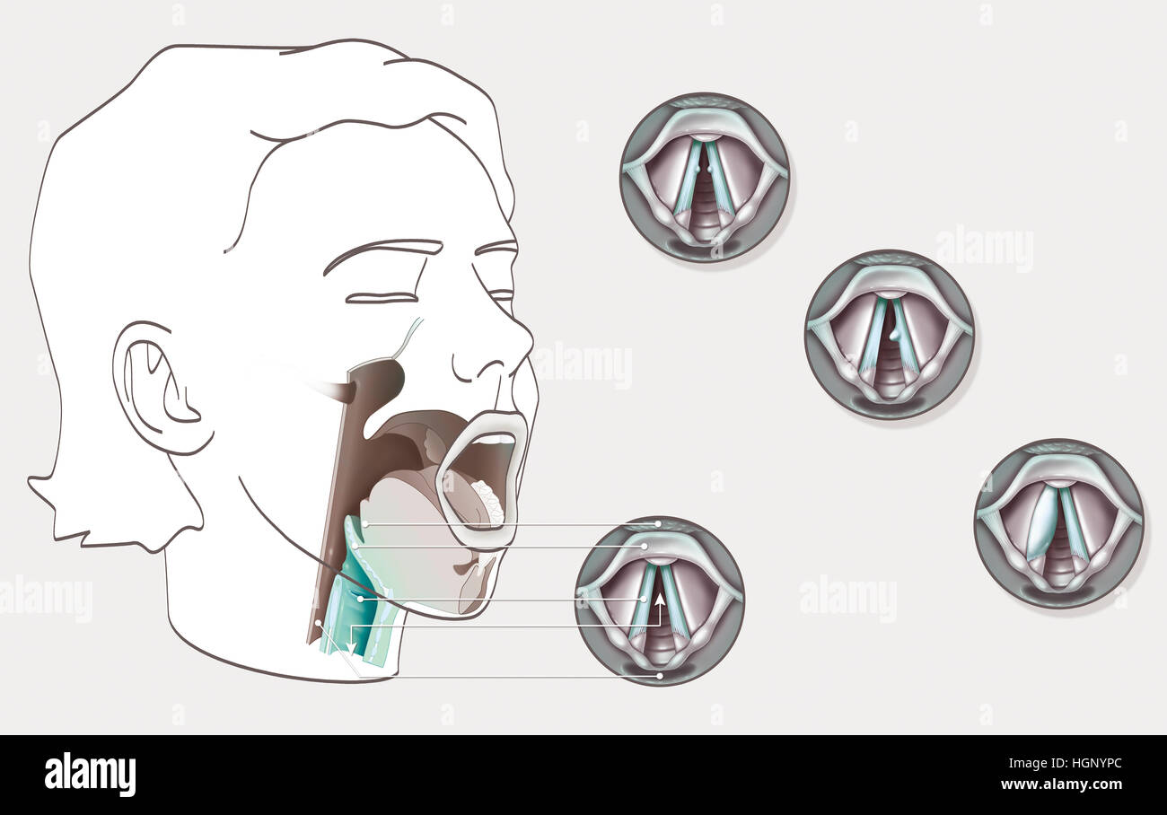 Larynx And Vocal Cord Stockfotos & Larynx And Vocal Cord Bilder - Alamy