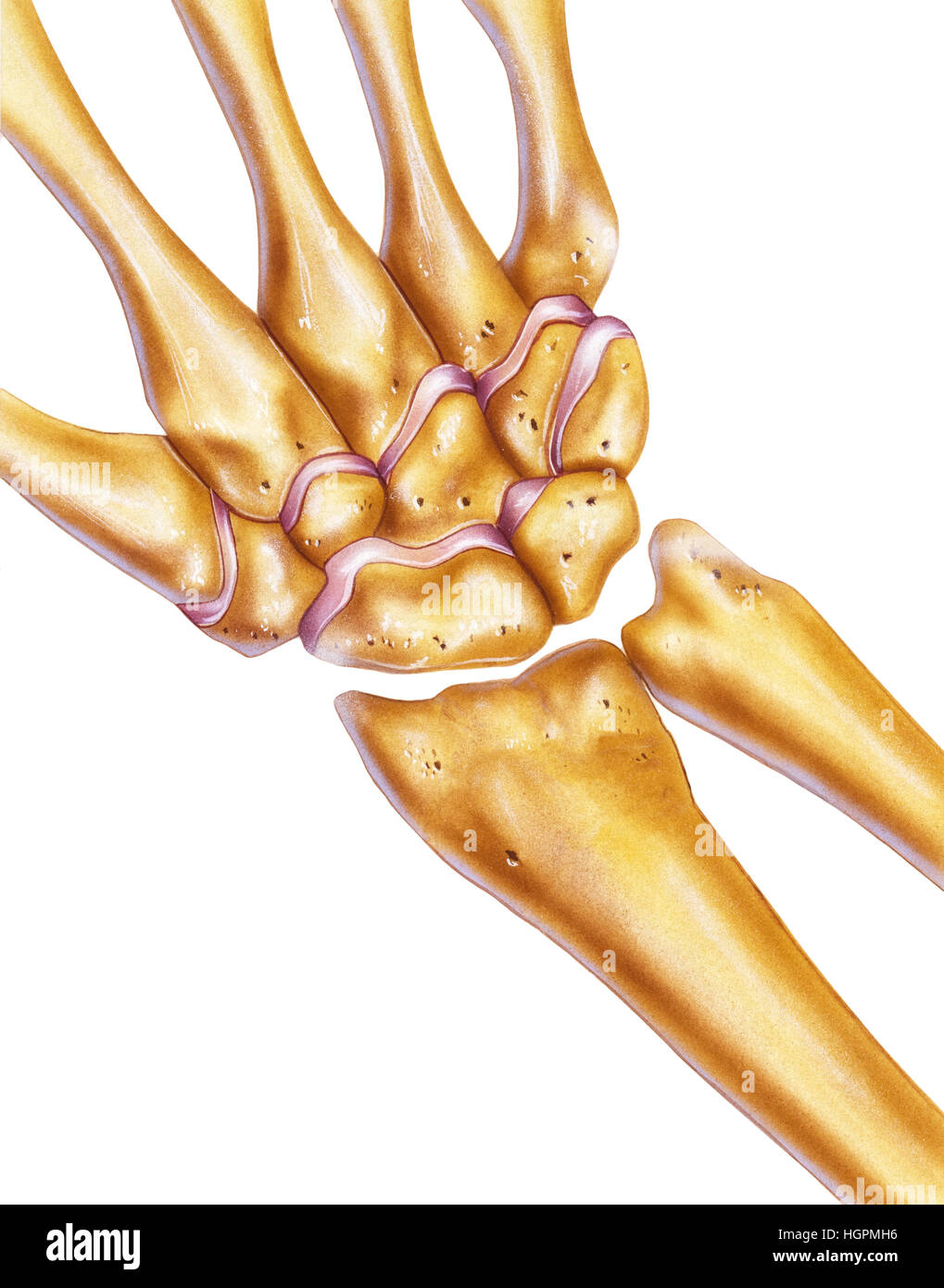 Hand und Handgelenk - Knochen & Gelenke Stockfoto, Bild: 130806178 ...