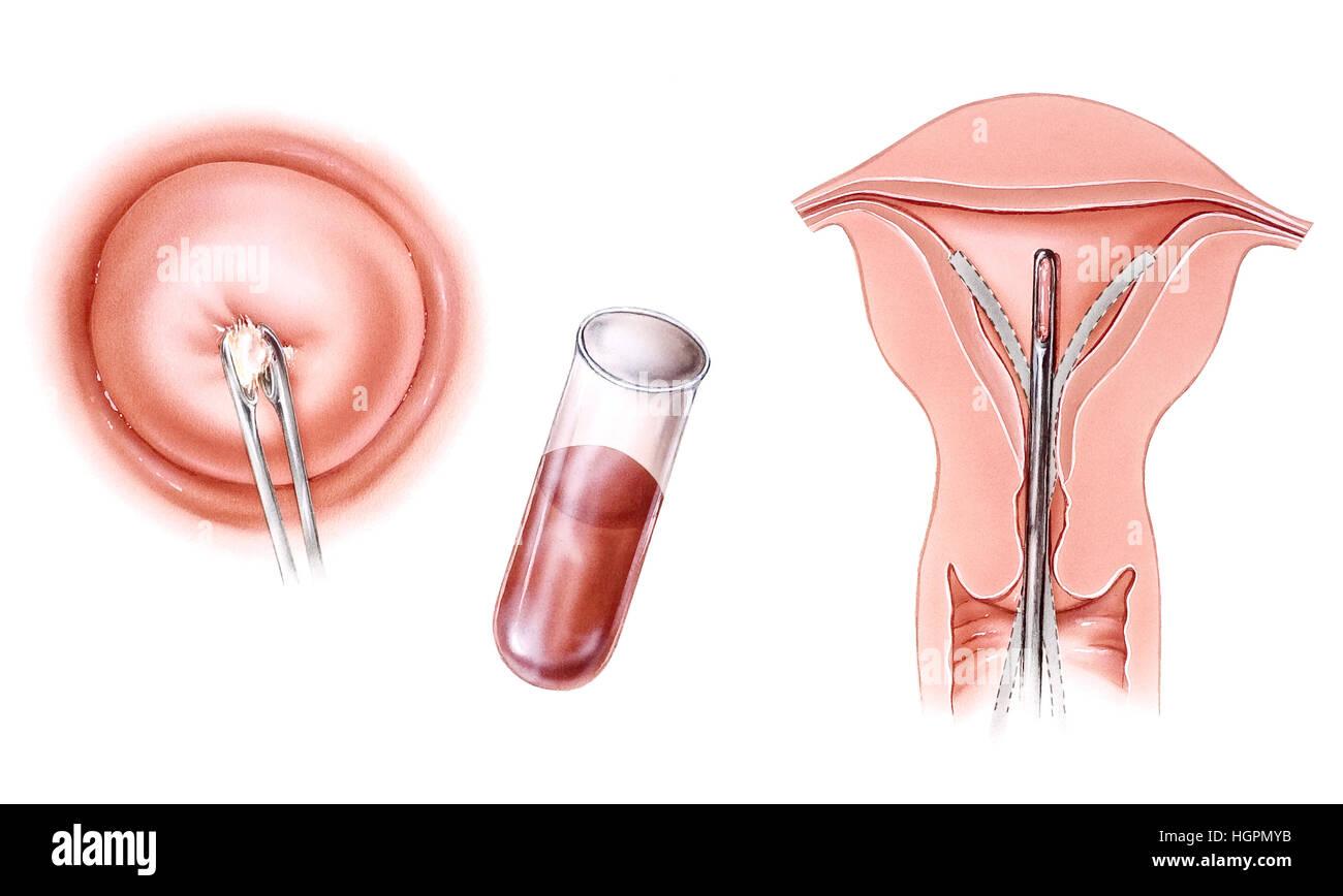 Schwangerschaft - Infertitlity Tests. Postcoital Test (links), Blut ...