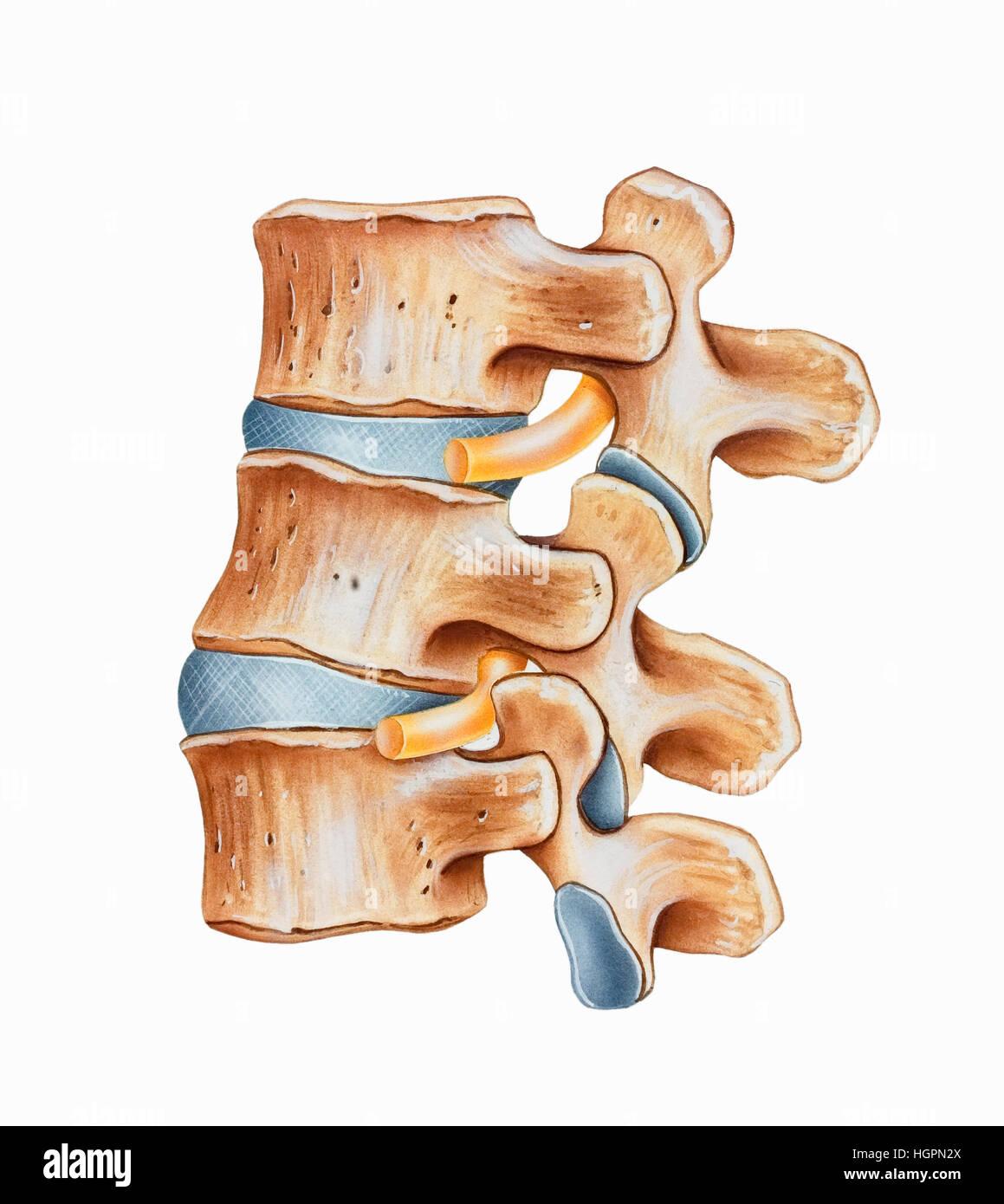 Wirbelsäule - lumbale Hyperlordosis ist eine übertriebene Krümmung ...