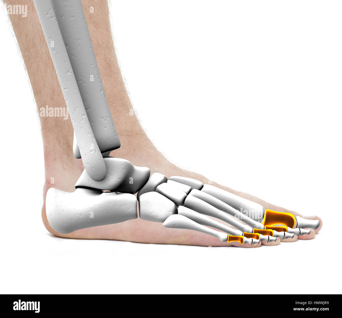 Proximal Tibia Stockfotos & Proximal Tibia Bilder - Alamy