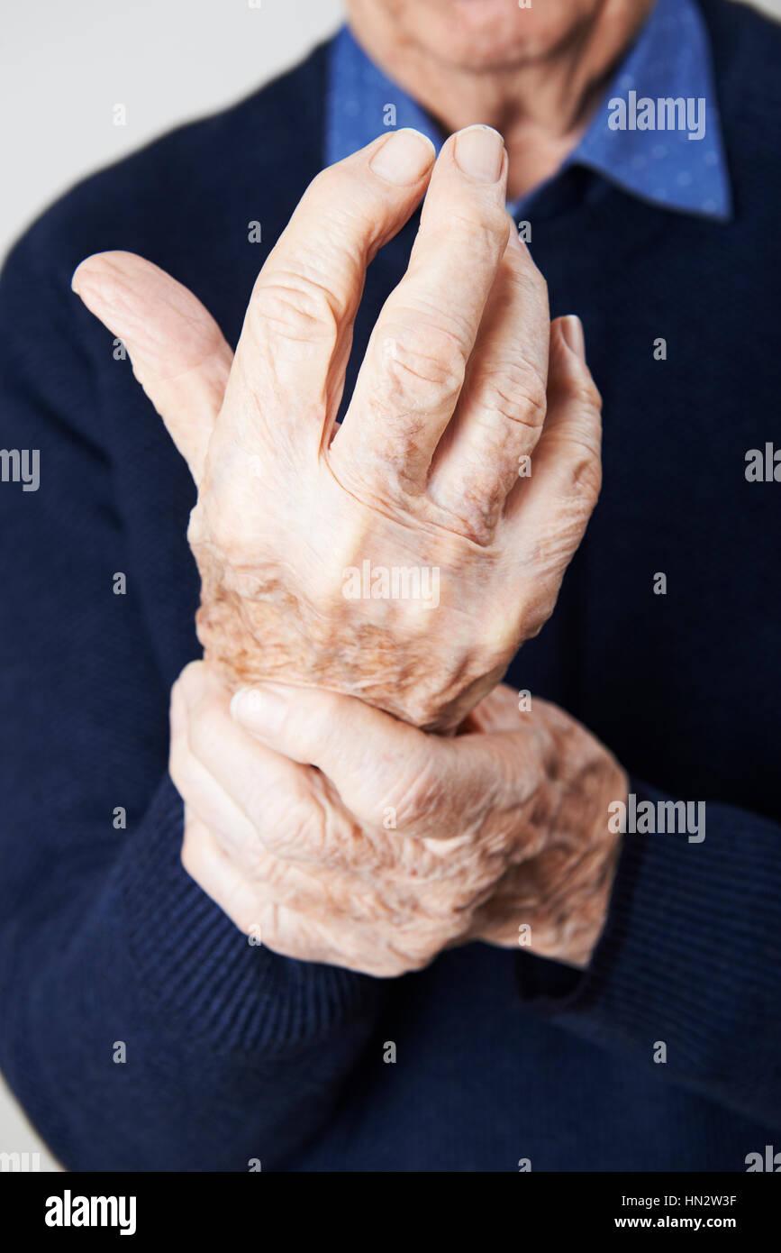 Porträt von älteren Menschen leiden mit Arthritis Stockbild