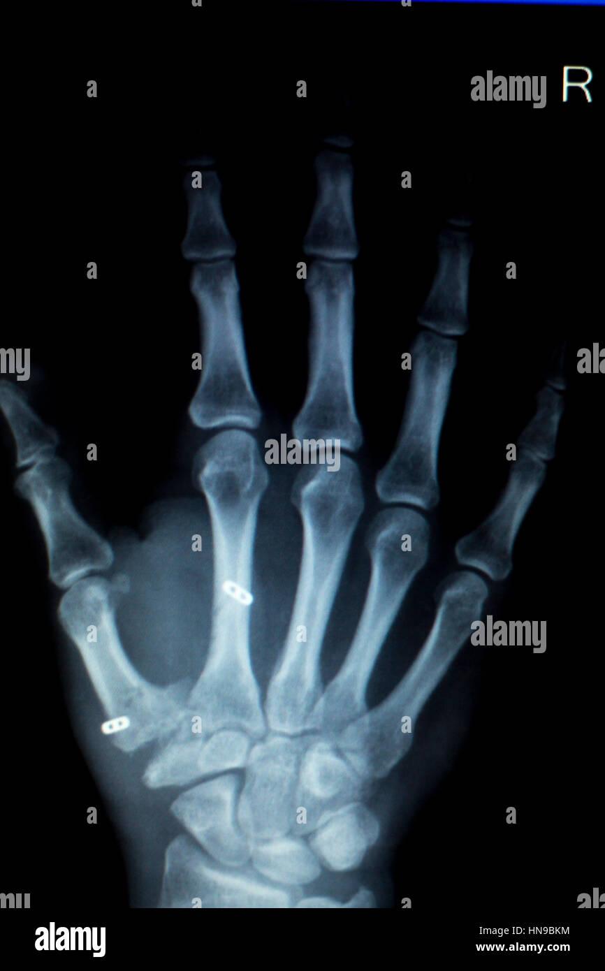 Orthopädie Hand gemeinsame Meniskus, Bänder, Sehnen und Knorpel ...