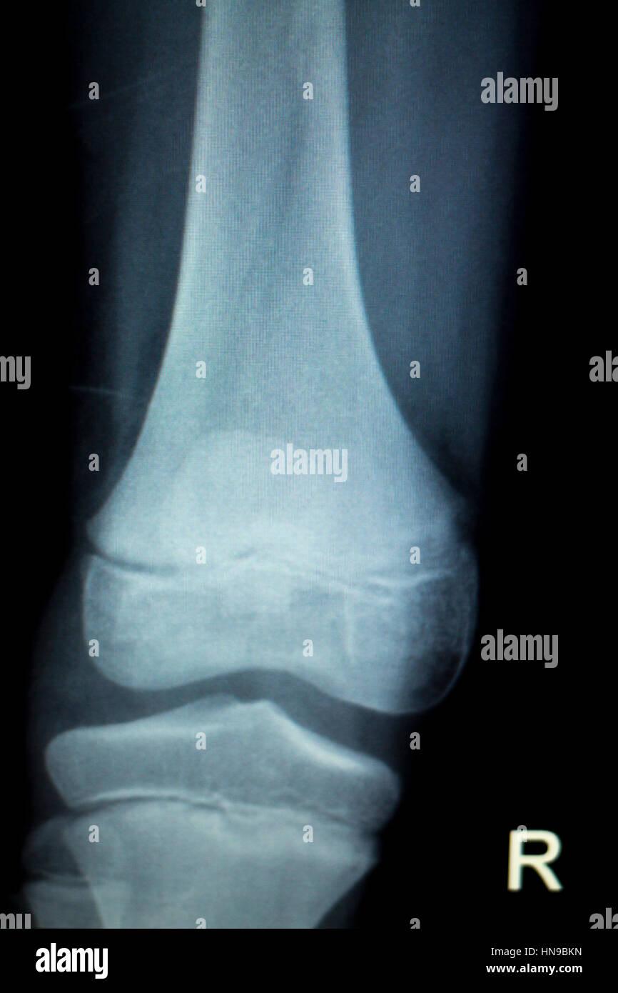 Cartilage Injury Stockfotos & Cartilage Injury Bilder - Alamy