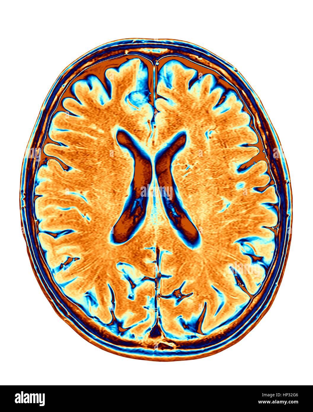 Normale Gehirn. Farbige Magnetresonanz-Bildgebung (MRI) Scan von ...