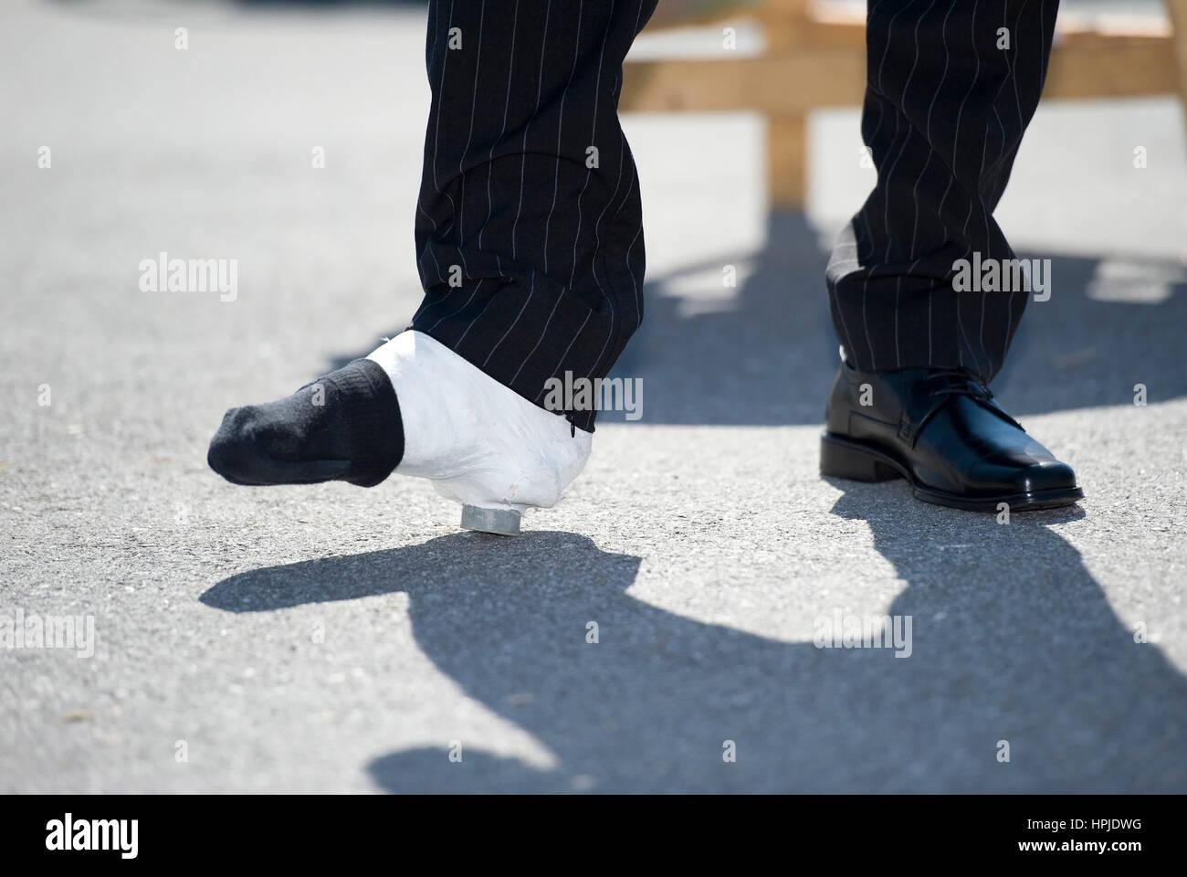 Gipsbein - Bein in Gips Stockfotografie - Alamy