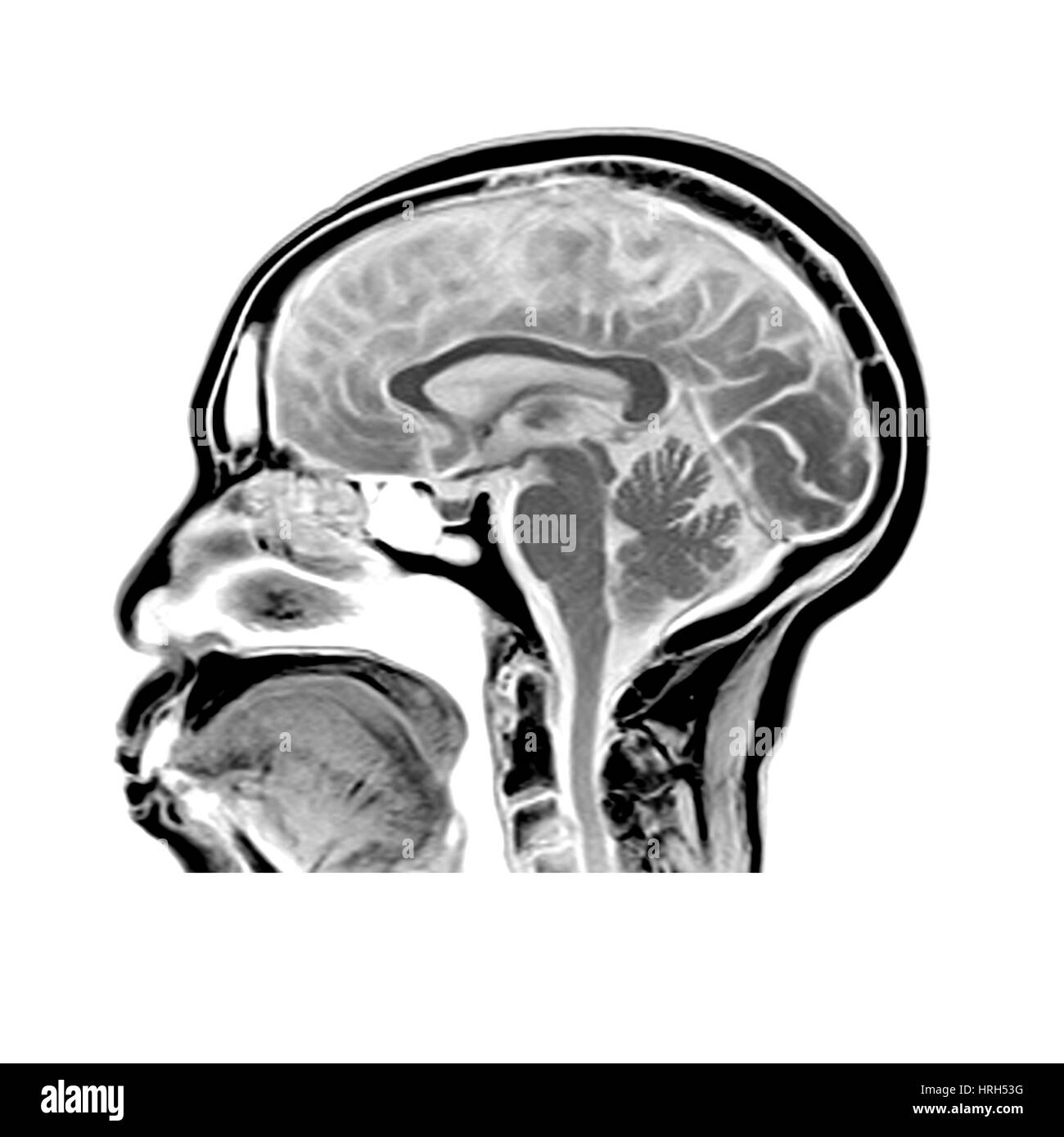 Brain Tissues Stockfotos & Brain Tissues Bilder - Alamy