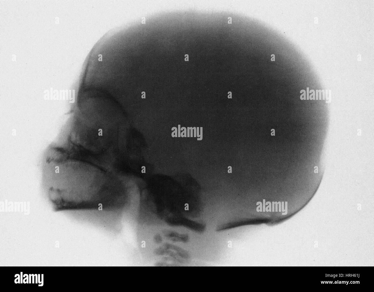 Baby Schädel Röntgen Stockfoto, Bild: 134987598 - Alamy