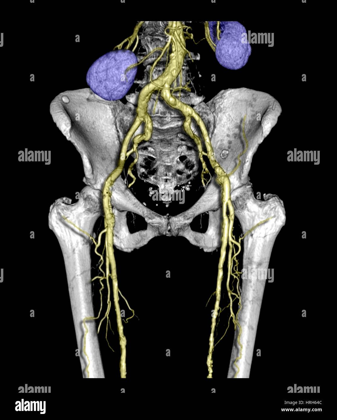 Becken und Oberschenkel mit Arteriosklerose Stockfoto, Bild ...