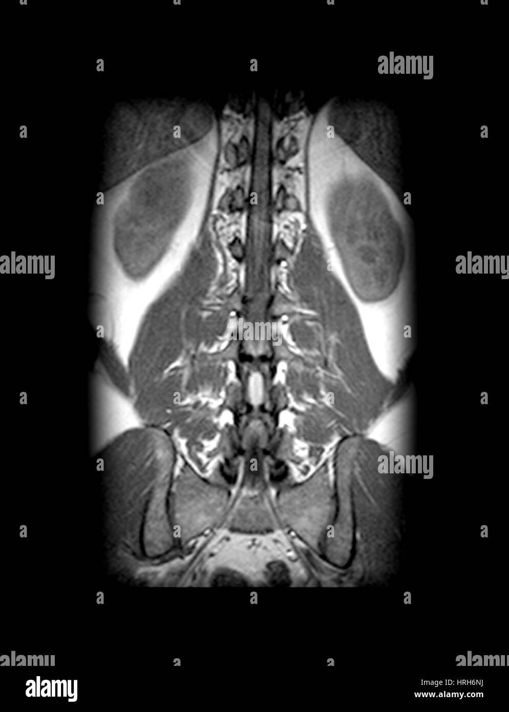 MRT von Rückenmark und Nervenwurzeln Stockfoto, Bild: 134988158 - Alamy