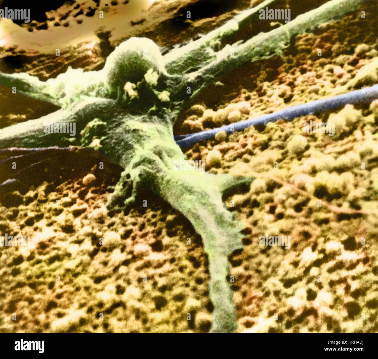 Bösartigen Krebszelle Stockbild