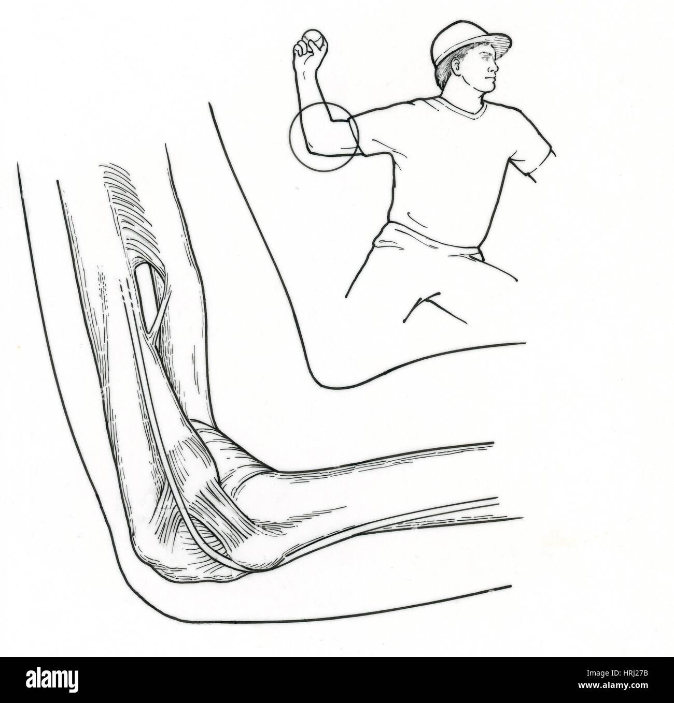 Illustration der Ellenbogen Bänder Stockfoto, Bild: 135006575 - Alamy