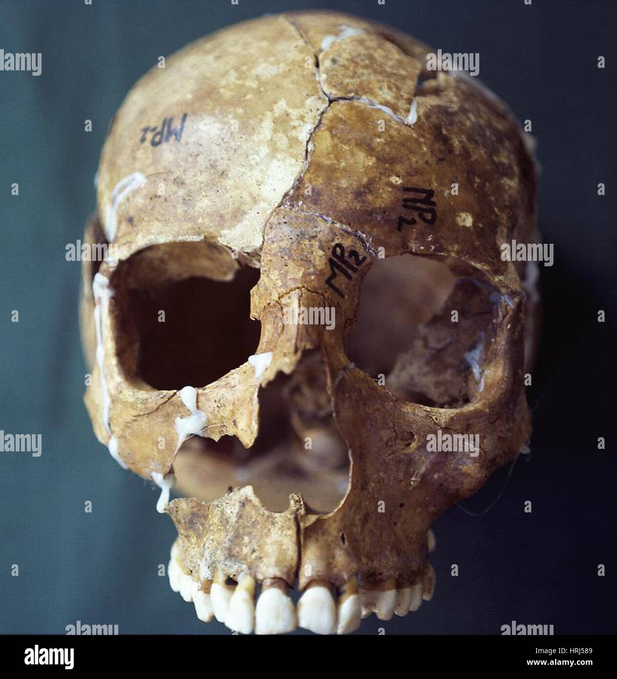 Forensische Beweise, Schädel-Rekonstruktion Stockbild