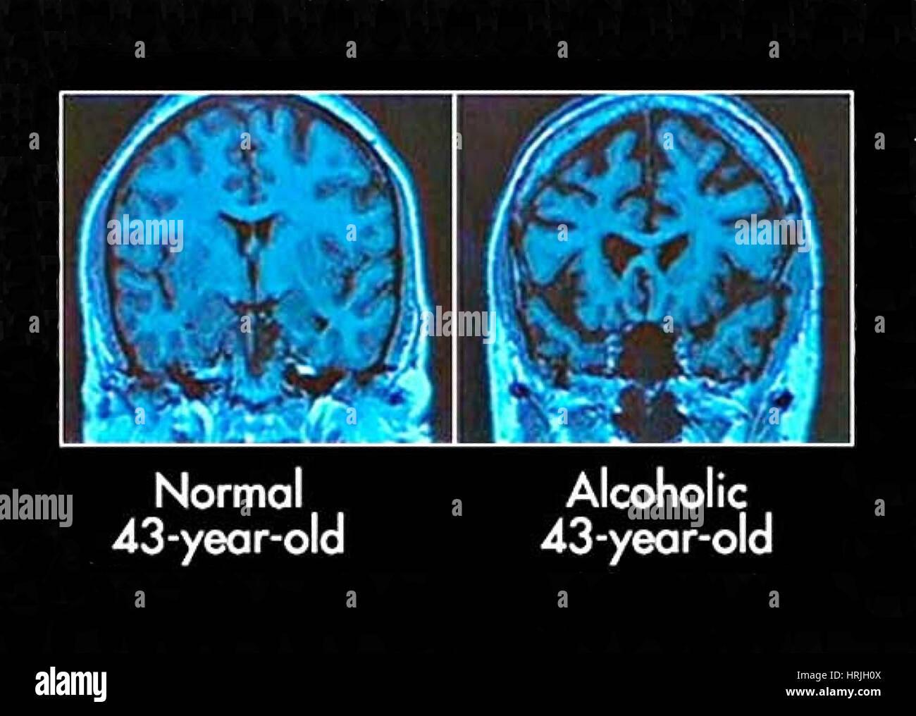 Mri Scans Of Normal Brains Stockfotos & Mri Scans Of Normal Brains ...