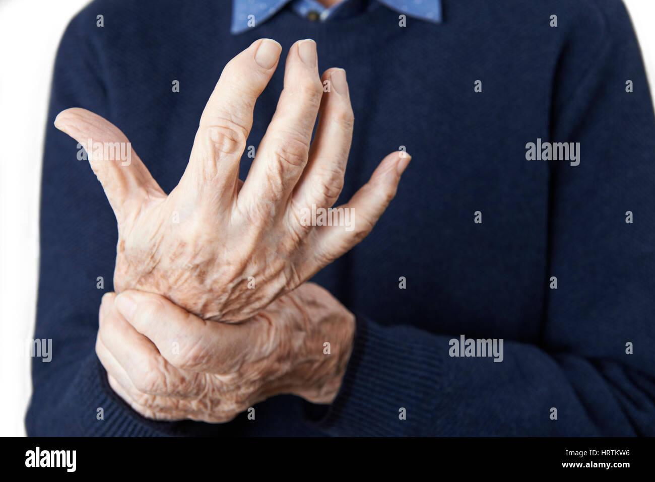 Nahaufnahme des älteren Menschen mit Arthritis leiden Stockbild