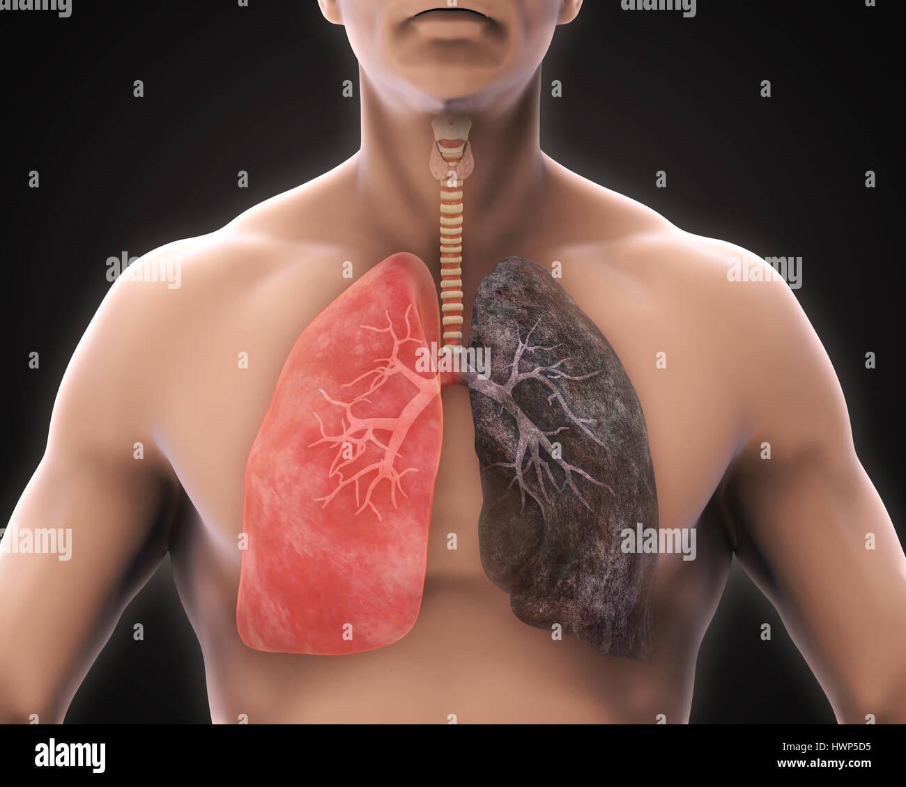 Lunge raucher und nichtraucher Rauchen und
