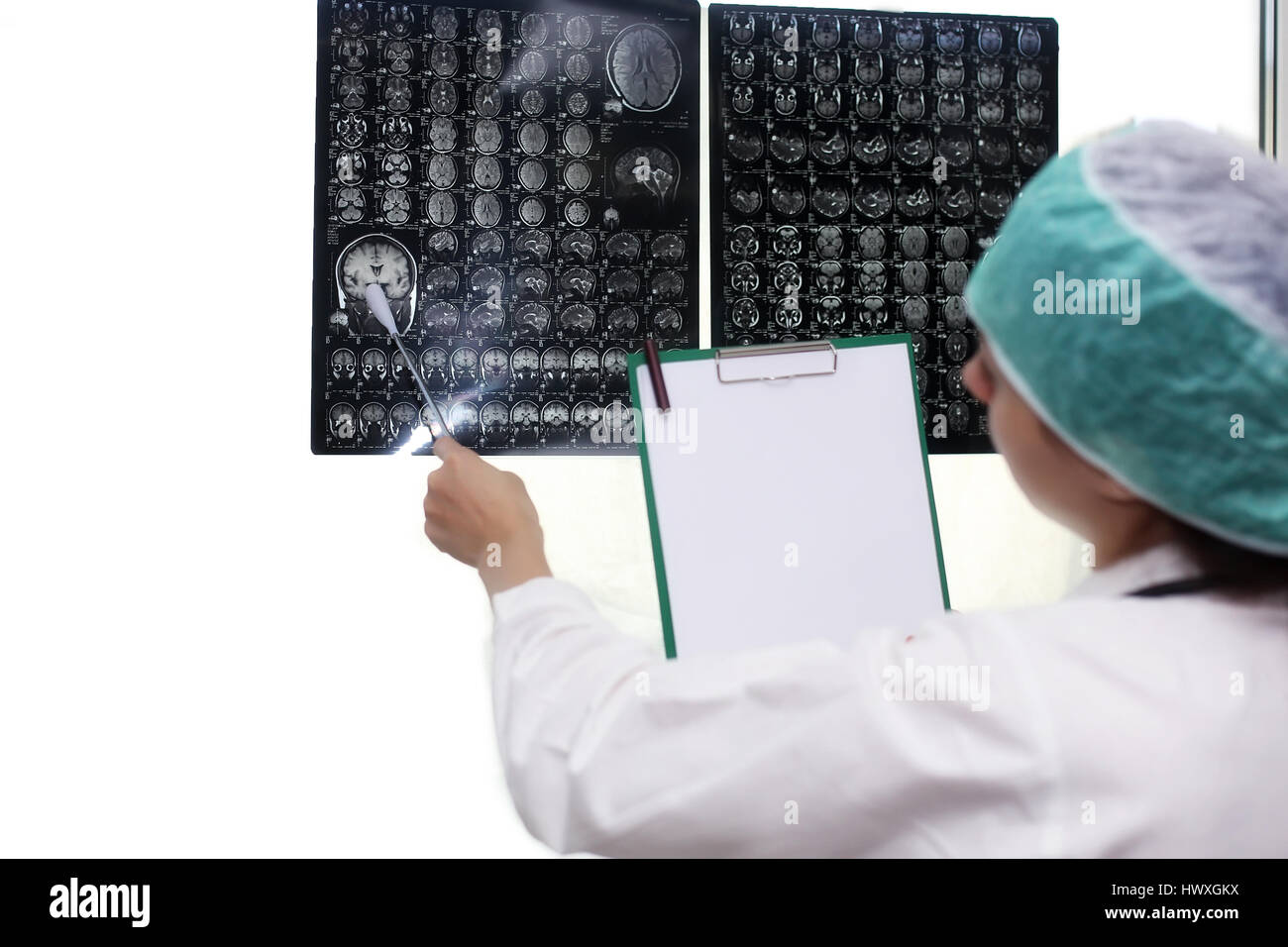 Person Holding Human Brain Stockfotos & Person Holding Human Brain ...