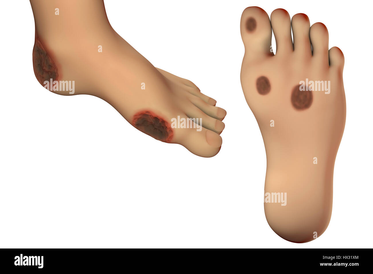 Foot Infection Stockfotos & Foot Infection Bilder - Alamy