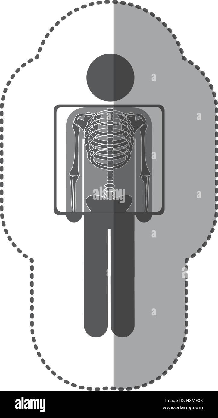 Aufkleber Piktogramm monochrome Patienten und Radiographie Stockbild