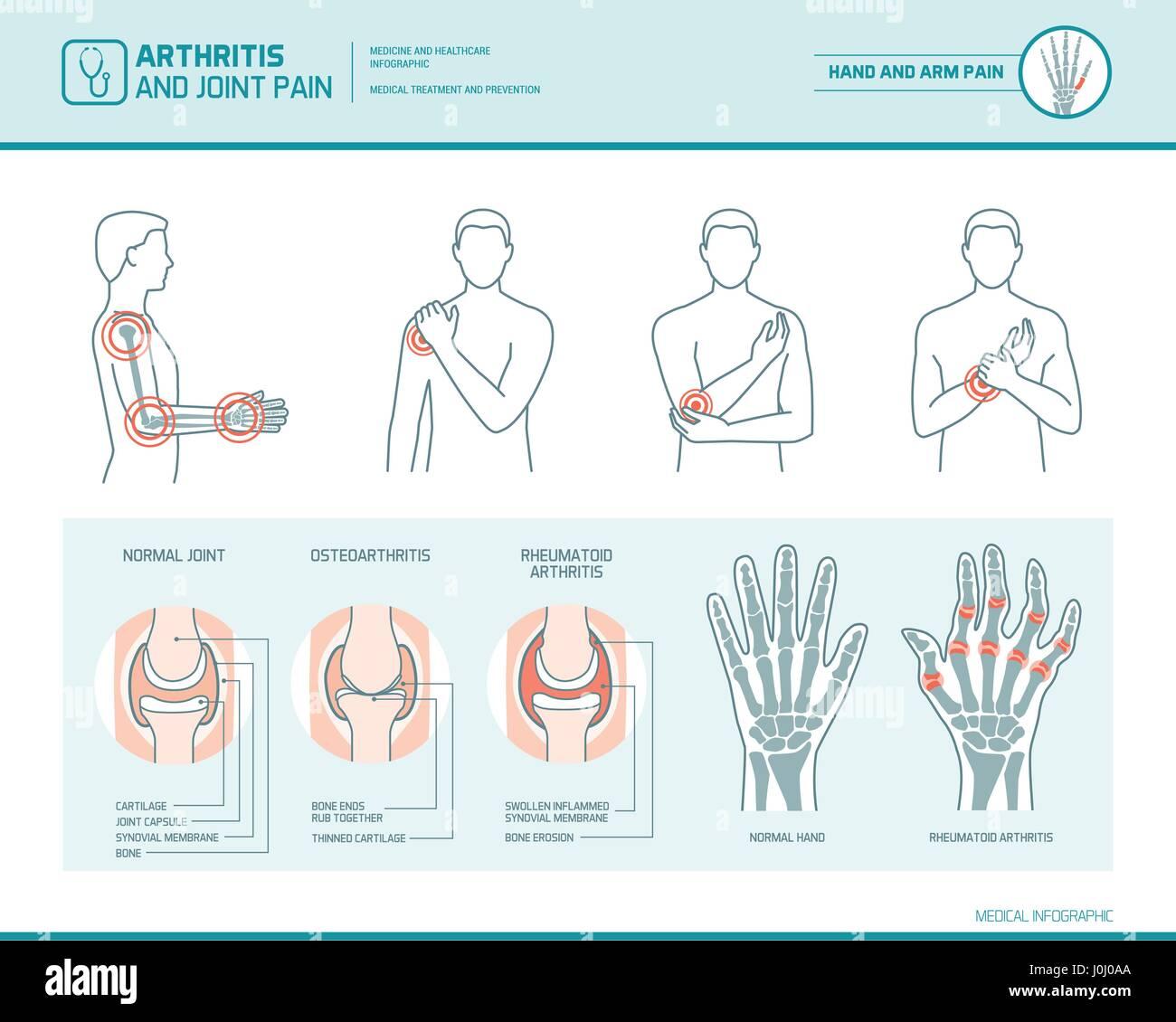 Arthritis und Schmerzen Infografik, anatomische Abbildung eines entzündet Hand und arm Stockbild