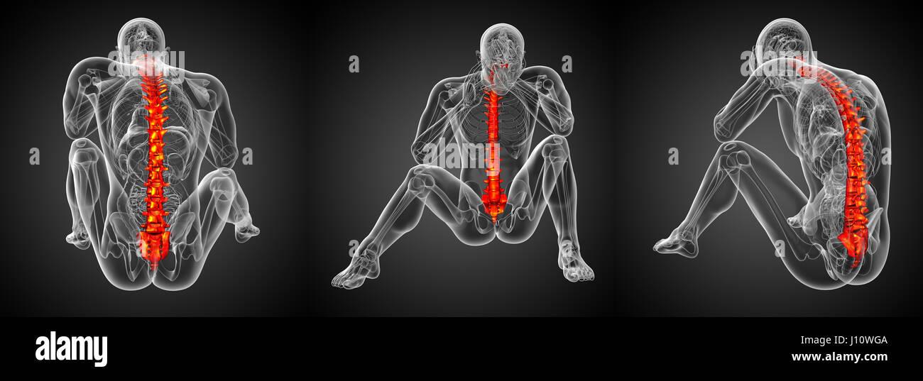 Atemberaubend Brust X Ray Seitenansicht Anatomie Zeitgenössisch ...