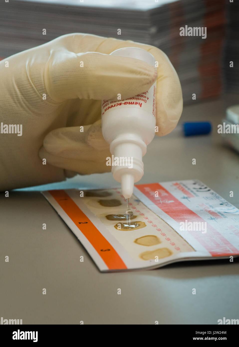 Testen von Kotproben auf ein Darm screening-Karte auf das Vorhandensein von okkultes Blut im Stuhl (versteckt) Stockbild